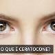 Ceratocone