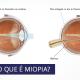 O que é Miopia? - Comparação Olho sem miopia e olho com miopia