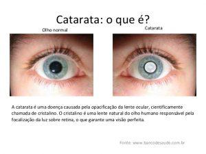 Olho Normal x Olho com Catarata