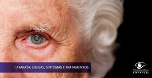 Catarata: Causas, Sintomas e Tratamento